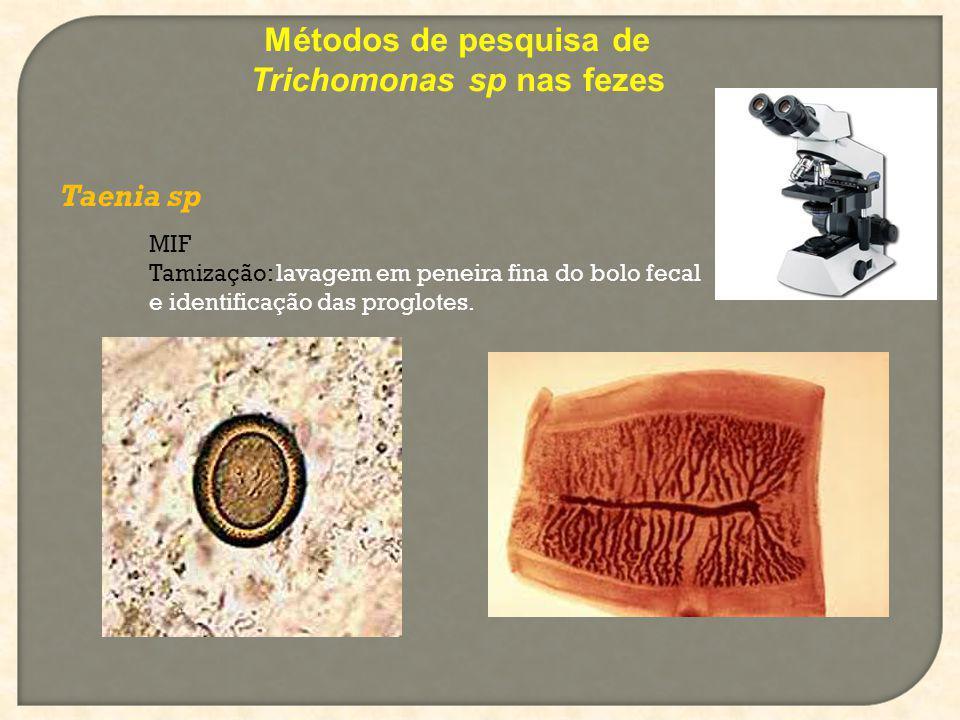 Métodos de pesquisa de Trichomonas sp nas fezes