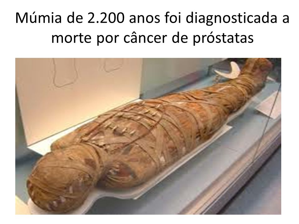 Múmia de 2.200 anos foi diagnosticada a morte por câncer de próstatas