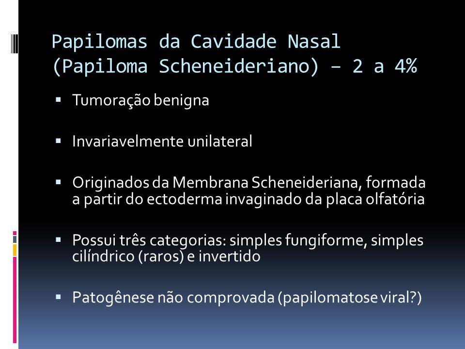 Papilomas da Cavidade Nasal (Papiloma Scheneideriano) – 2 a 4%