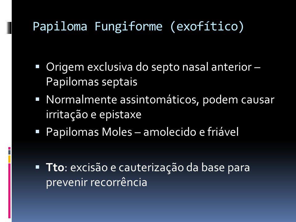 Papiloma Fungiforme (exofítico)