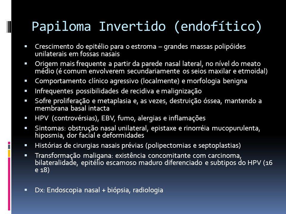Papiloma Invertido (endofítico)
