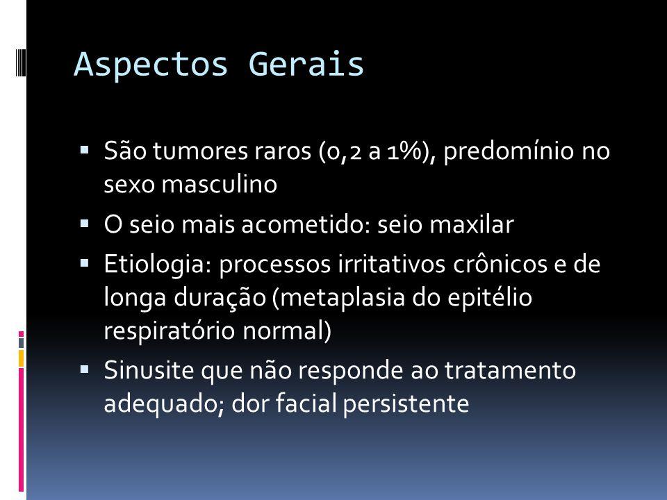 Aspectos Gerais São tumores raros (0,2 a 1%), predomínio no sexo masculino. O seio mais acometido: seio maxilar.