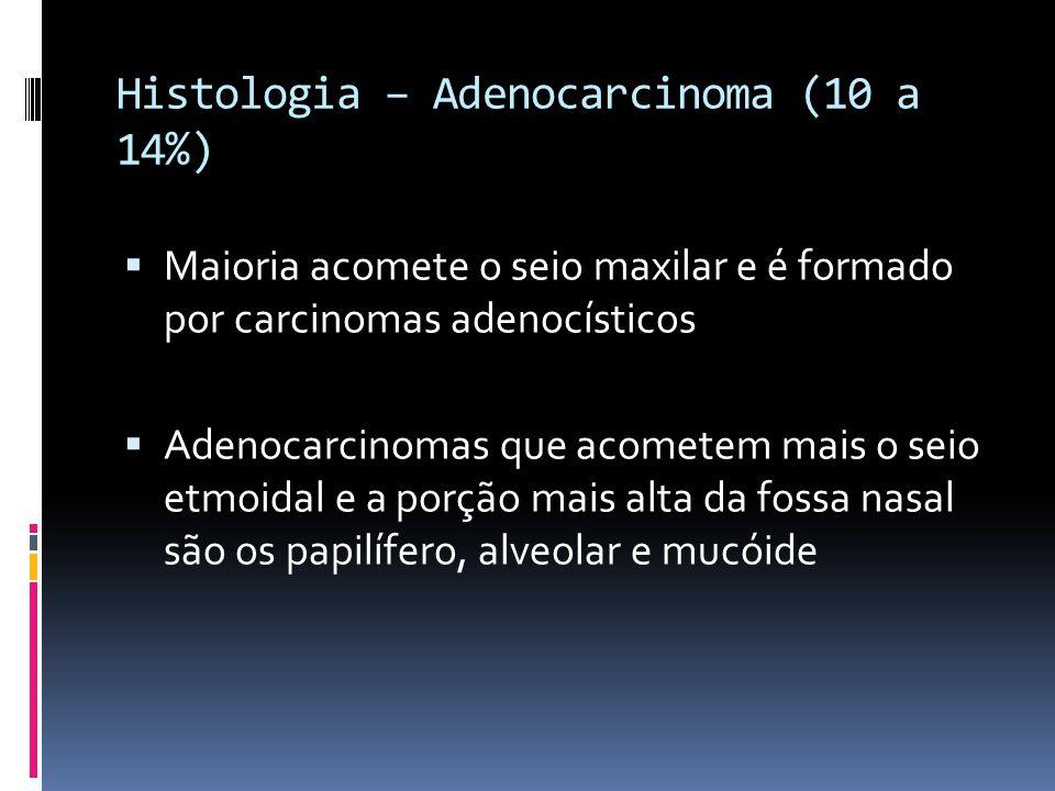 Histologia – Adenocarcinoma (10 a 14%)