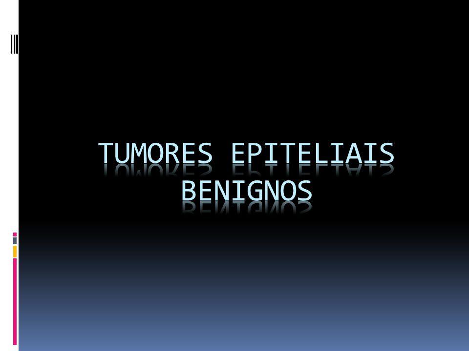 TUMORES EPITELIAIS BENIGNOS