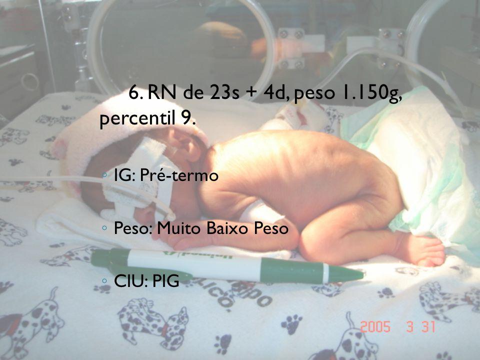 6. RN de 23s + 4d, peso 1.150g, percentil 9.