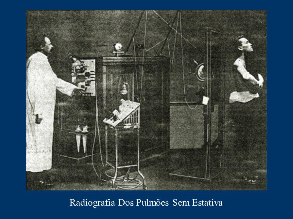 Radiografia Dos Pulmões Sem Estativa