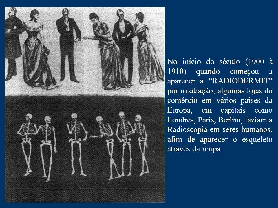 No início do século (1900 à 1910) quando começou a aparecer a RADIODERMIT por irradiação, algumas lojas do comércio em vários países da Europa, em capitais como Londres, Paris, Berlim, faziam a Radioscopia em seres humanos, afim de aparecer o esqueleto através da roupa.