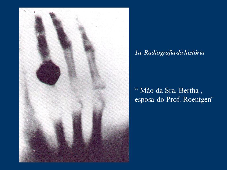 Mão da Sra. Bertha , esposa do Prof. Roentgen¨