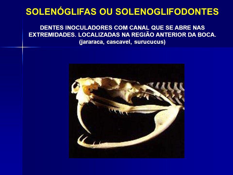 SOLENÓGLIFAS OU SOLENOGLIFODONTES (jararaca, cascavel, surucucus)