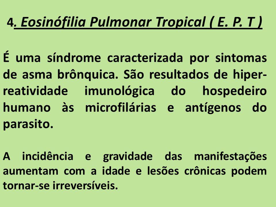 4. Eosinófilia Pulmonar Tropical ( E. P. T )