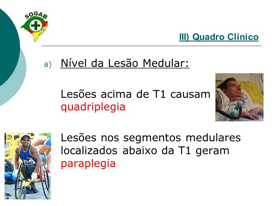 Nível da Lesão Medular: Lesões acima de T1 causam quadriplegia