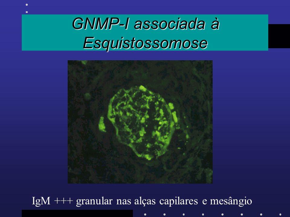GNMP-I associada à Esquistossomose