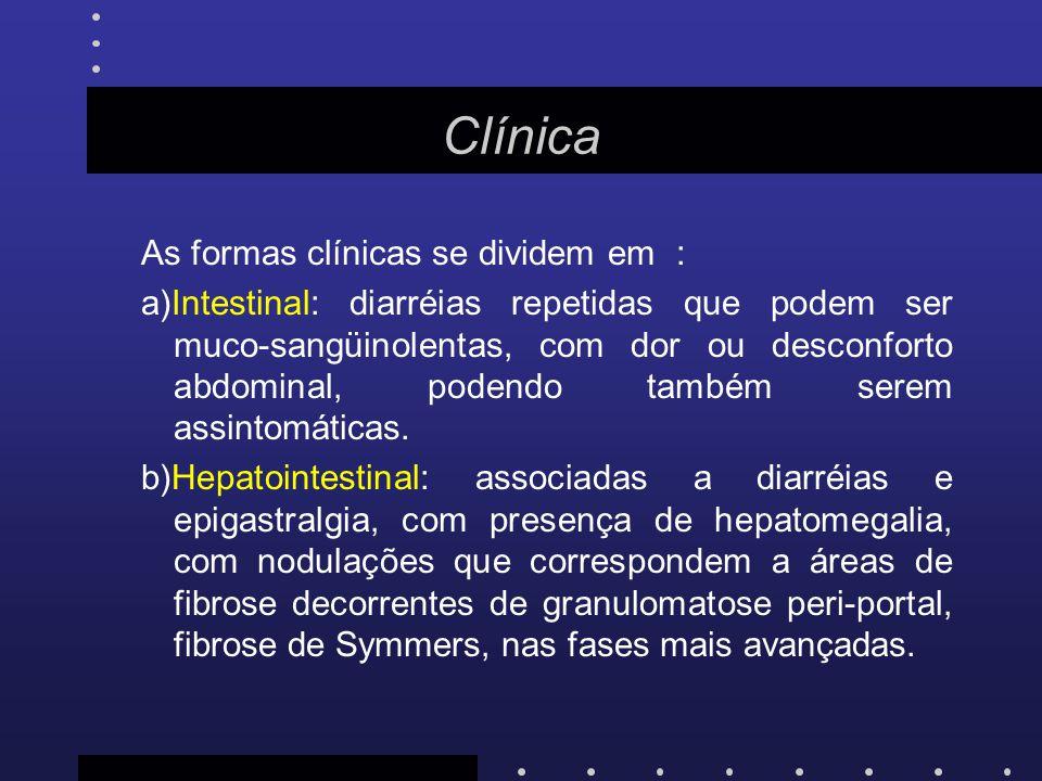Clínica As formas clínicas se dividem em :