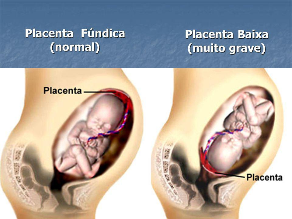 Placenta Fúndica (normal) Placenta Baixa (muito grave)