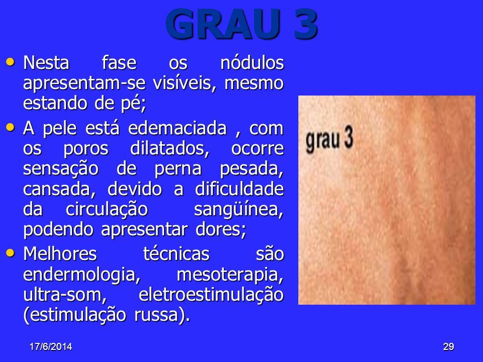 GRAU 3 Nesta fase os nódulos apresentam-se visíveis, mesmo estando de pé;