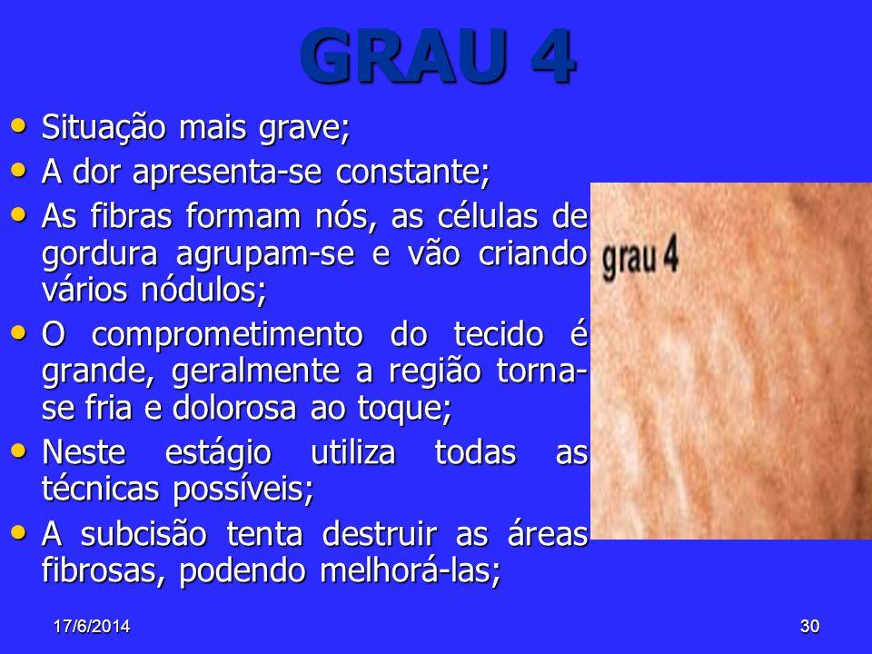 GRAU 4 Situação mais grave; A dor apresenta-se constante;