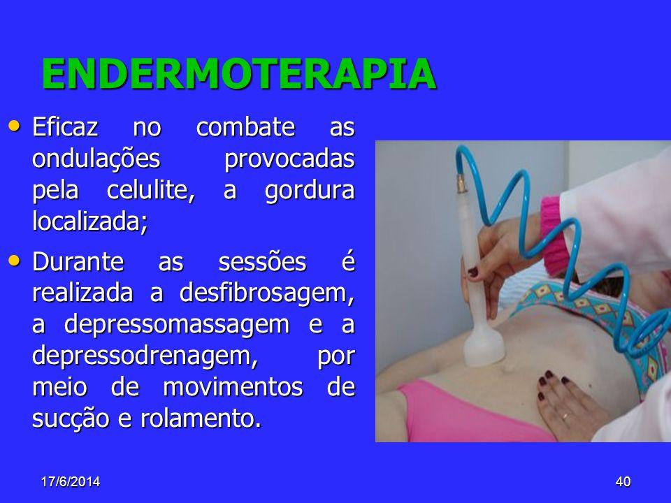 ENDERMOTERAPIA Eficaz no combate as ondulações provocadas pela celulite, a gordura localizada;