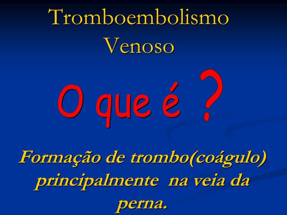Tromboembolismo Venoso