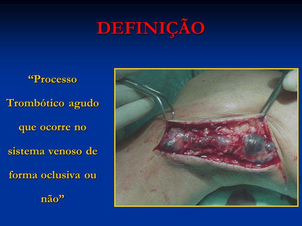 DEFINIÇÃO Processo Trombótico agudo que ocorre no sistema venoso de forma oclusiva ou não