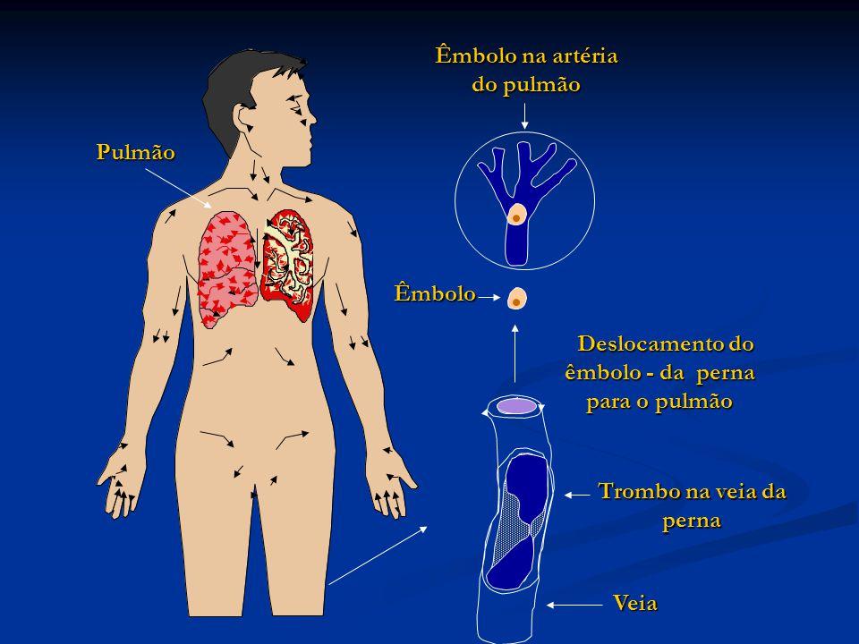 Deslocamento do êmbolo - da perna para o pulmão Êmbolo