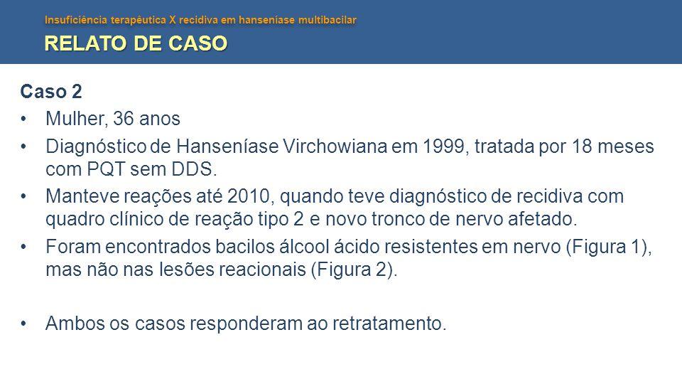 RELATO DE CASO Caso 2 Mulher, 36 anos