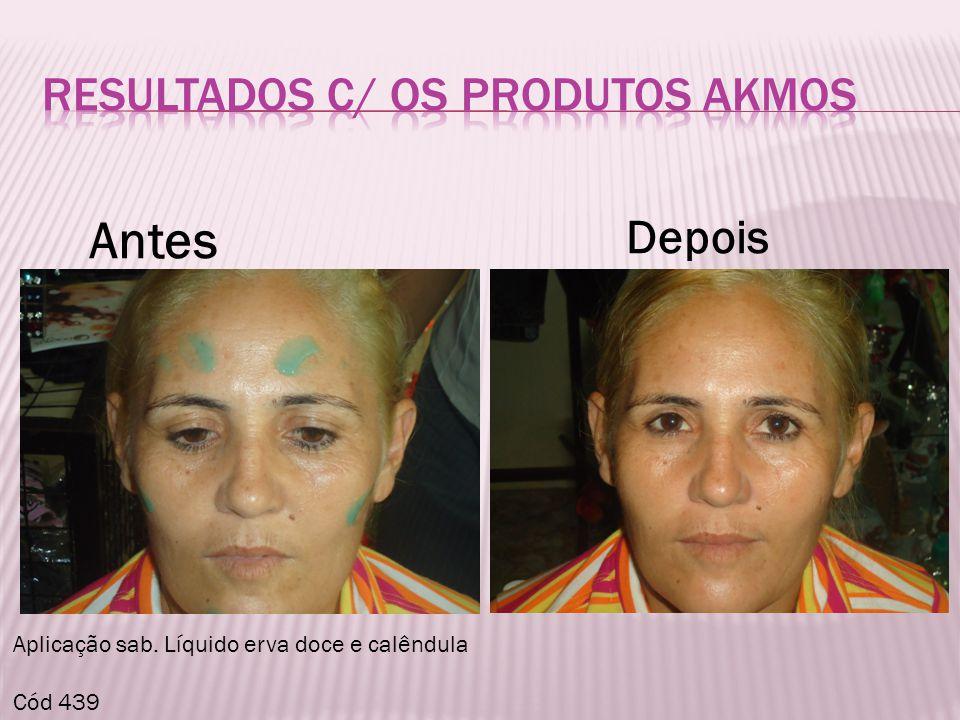 RESULTADOS C/ OS PRODUTOS aKMOS