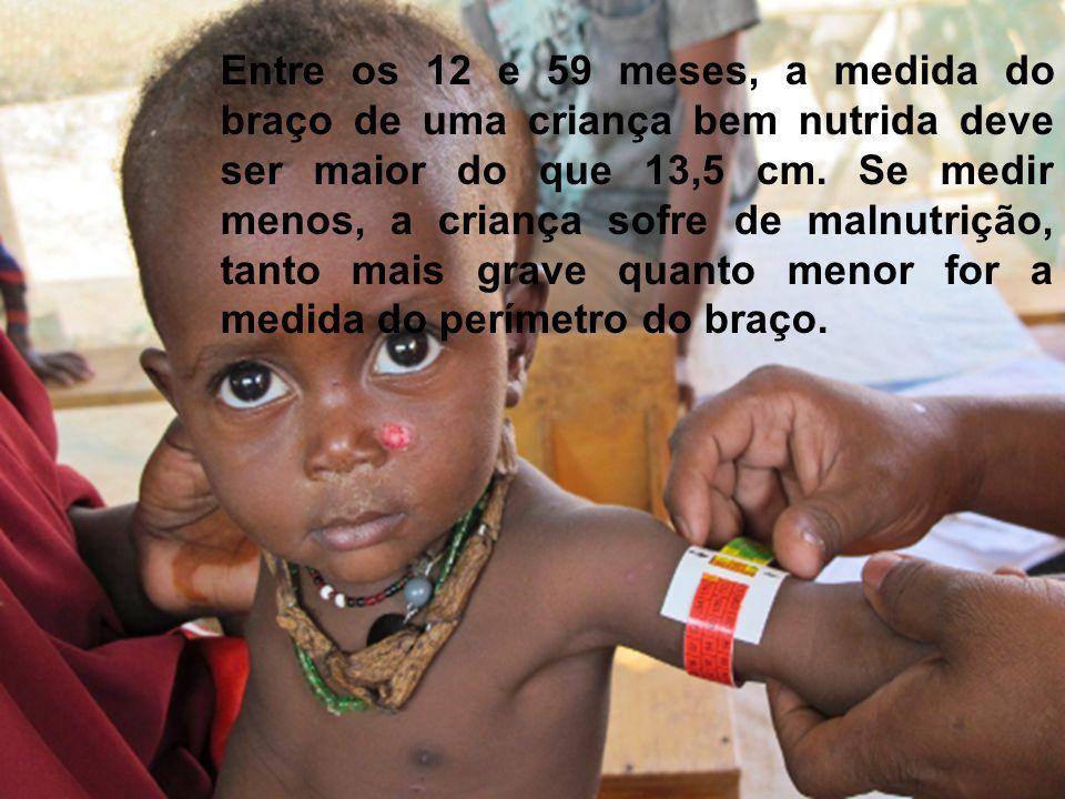 Entre os 12 e 59 meses, a medida do braço de uma criança bem nutrida deve ser maior do que 13,5 cm.