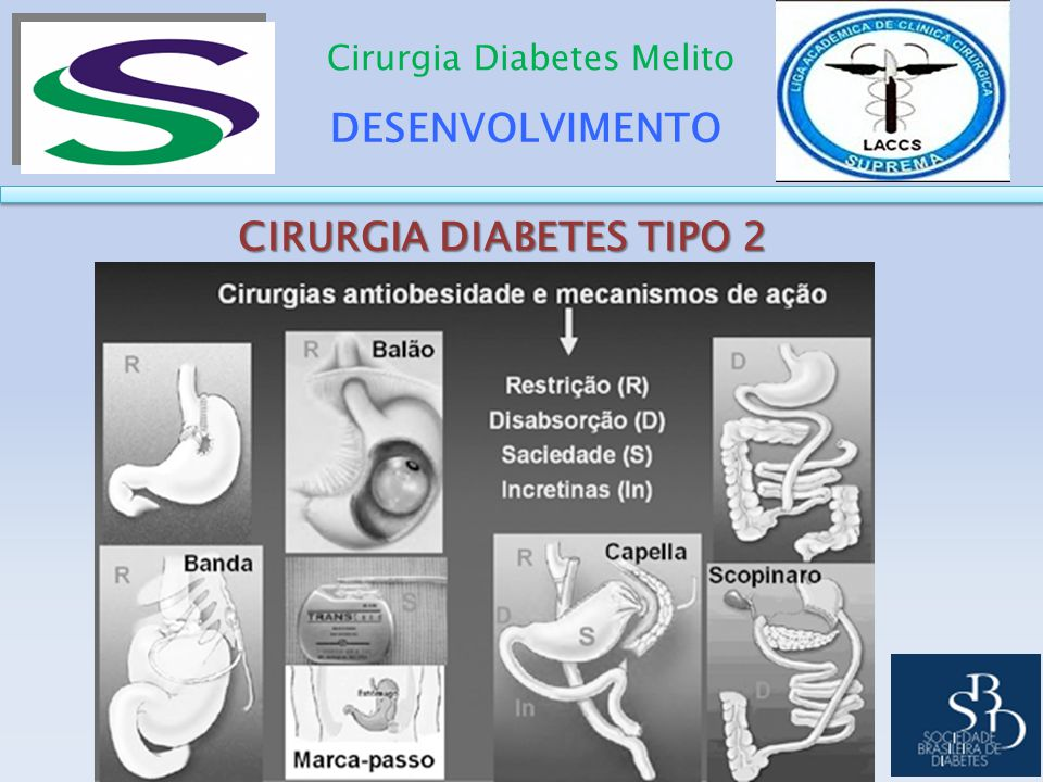 CIRURGIA DIABETES TIPO 2