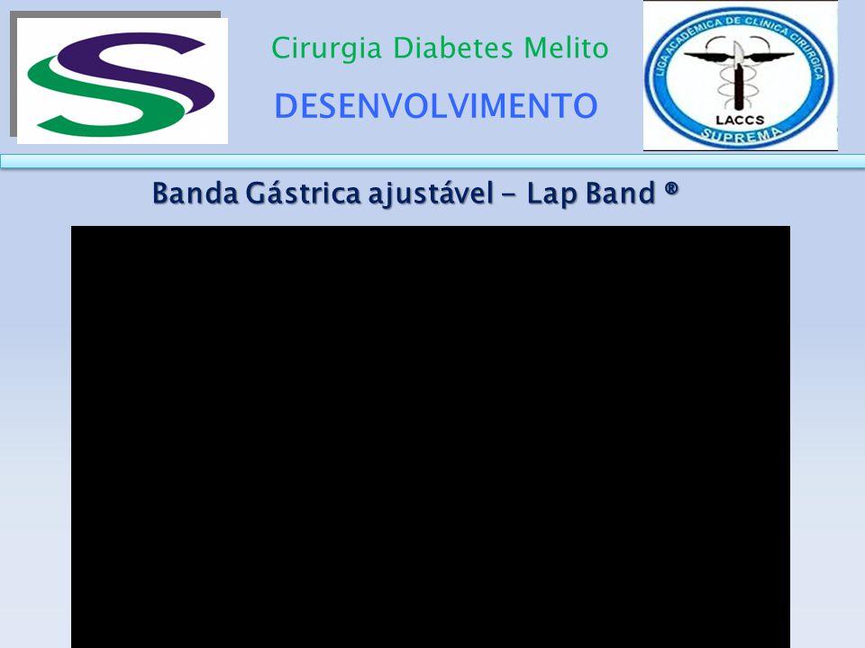 Banda Gástrica ajustável - Lap Band ®