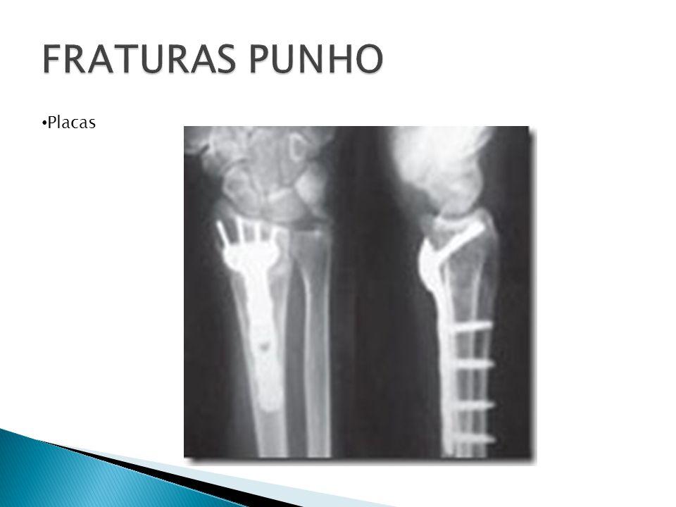 FRATURAS PUNHO Placas