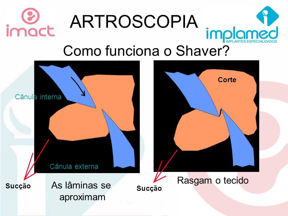 ARTROSCOPIA Como funciona o Shaver Rasgam o tecido As lâminas se