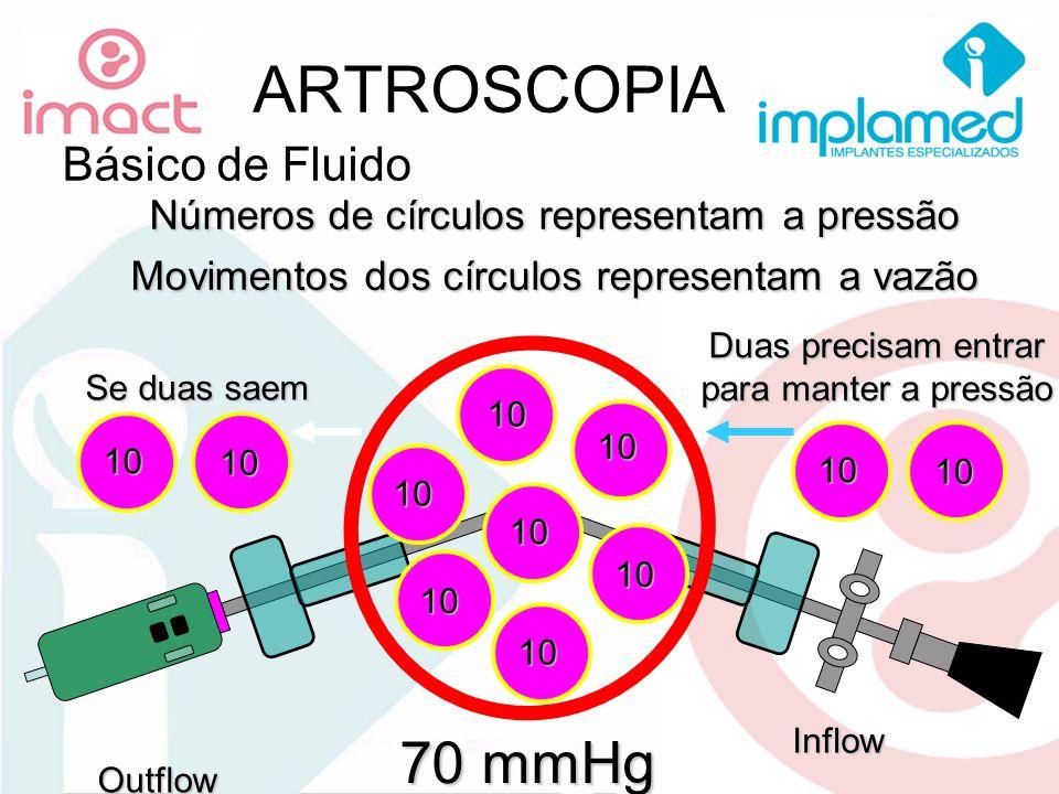 ARTROSCOPIA 70 mmHg Básico de Fluido