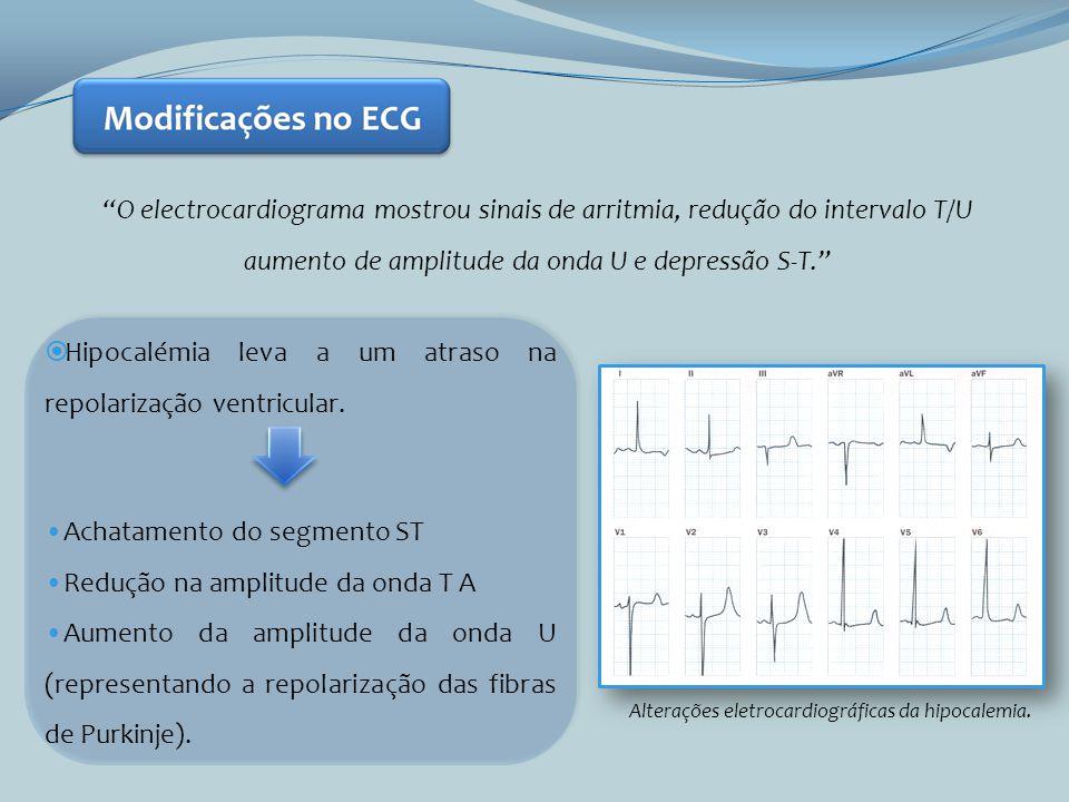 Alterações eletrocardiográficas da hipocalemia.