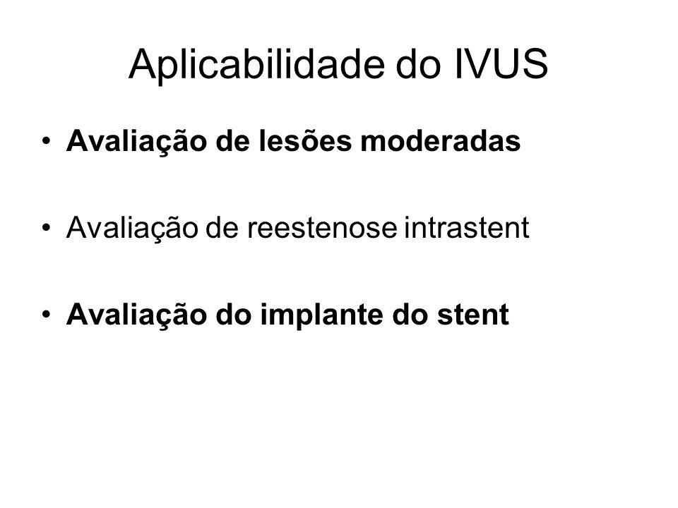 Aplicabilidade do IVUS