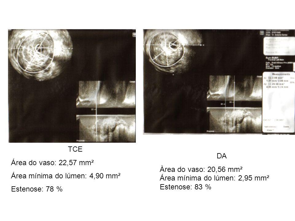 TCE Área do vaso: 22,57 mm². Área mínima do lúmen: 4,90 mm². Estenose: 78 % DA. Àrea do vaso: 20,56 mm².