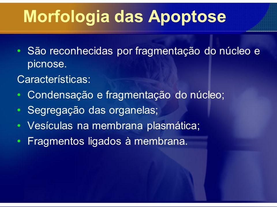 Morfologia das Apoptose