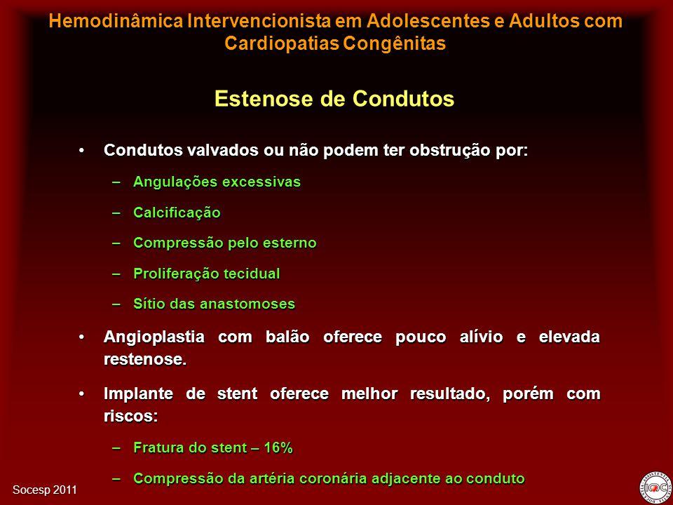 Hemodinâmica Intervencionista em Adolescentes e Adultos com Cardiopatias Congênitas