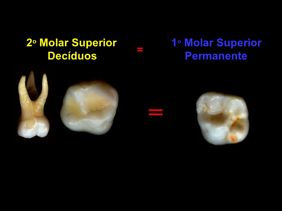 1o Molar Superior Permanente
