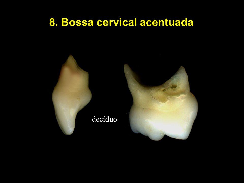 8. Bossa cervical acentuada