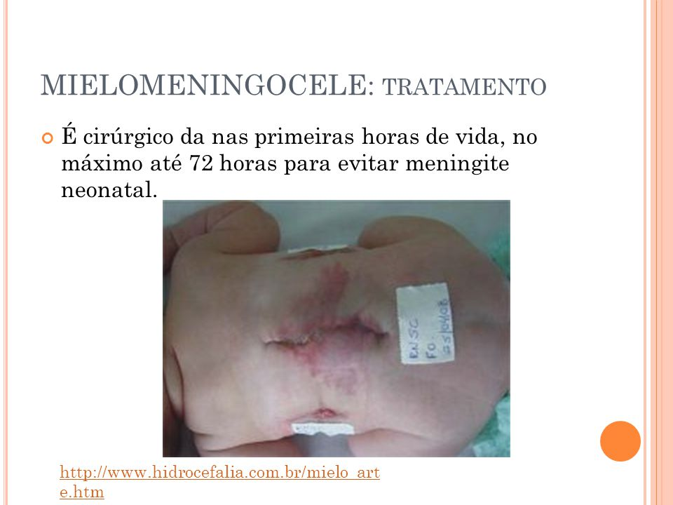 MIELOMENINGOCELE: tratamento