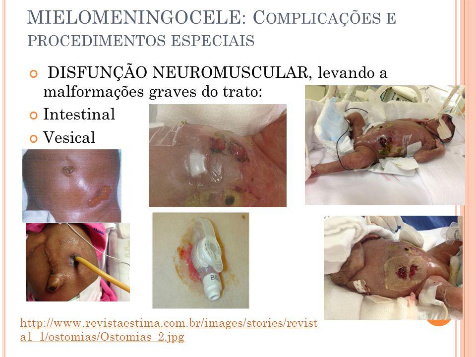 MIELOMENINGOCELE: Complicações e procedimentos especiais