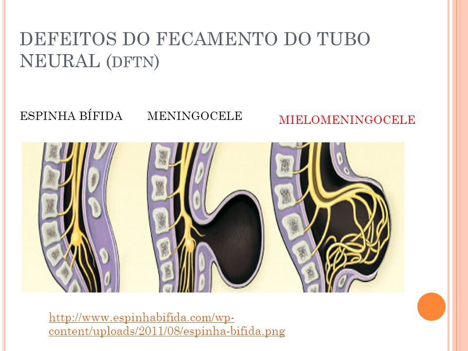 DEFEITOS DO FECAMENTO DO TUBO NEURAL (dftn)