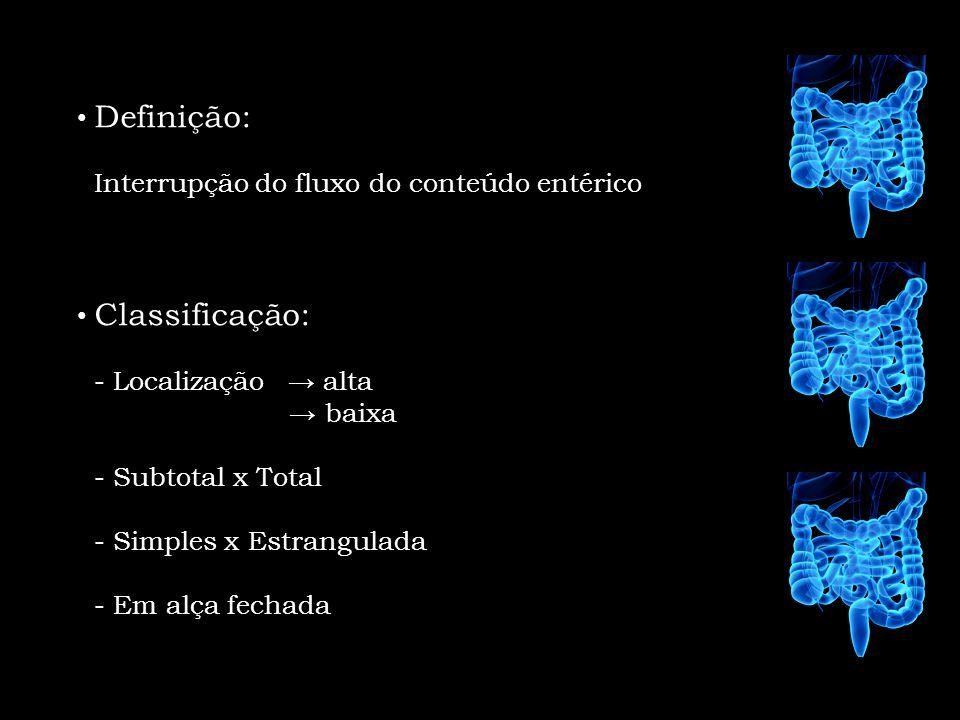 Definição: Interrupção do fluxo do conteúdo entérico. Classificação: - Localização → alta. → baixa.