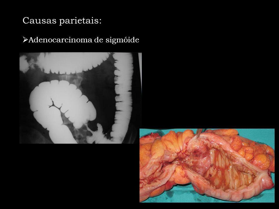 Causas parietais: Adenocarcinoma de sigmóide