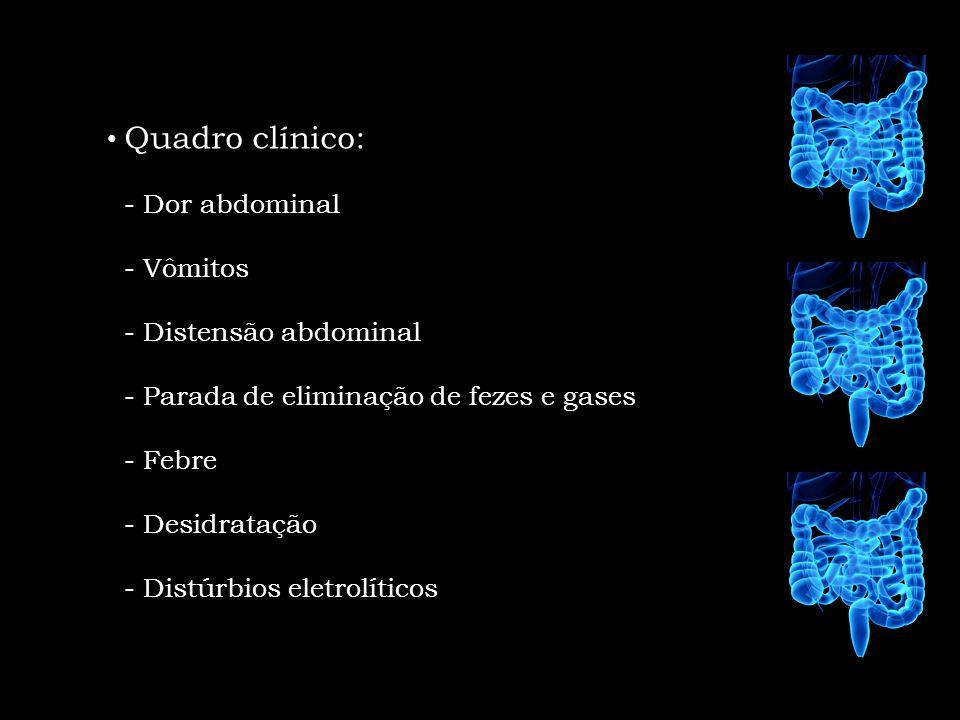 Quadro clínico: - Dor abdominal. - Vômitos. - Distensão abdominal. - Parada de eliminação de fezes e gases.