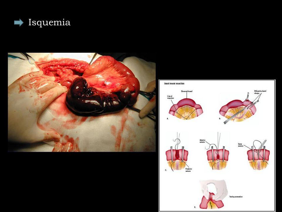 Isquemia