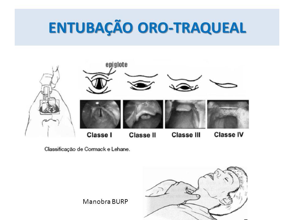 ENTUBAÇÃO ORO-TRAQUEAL