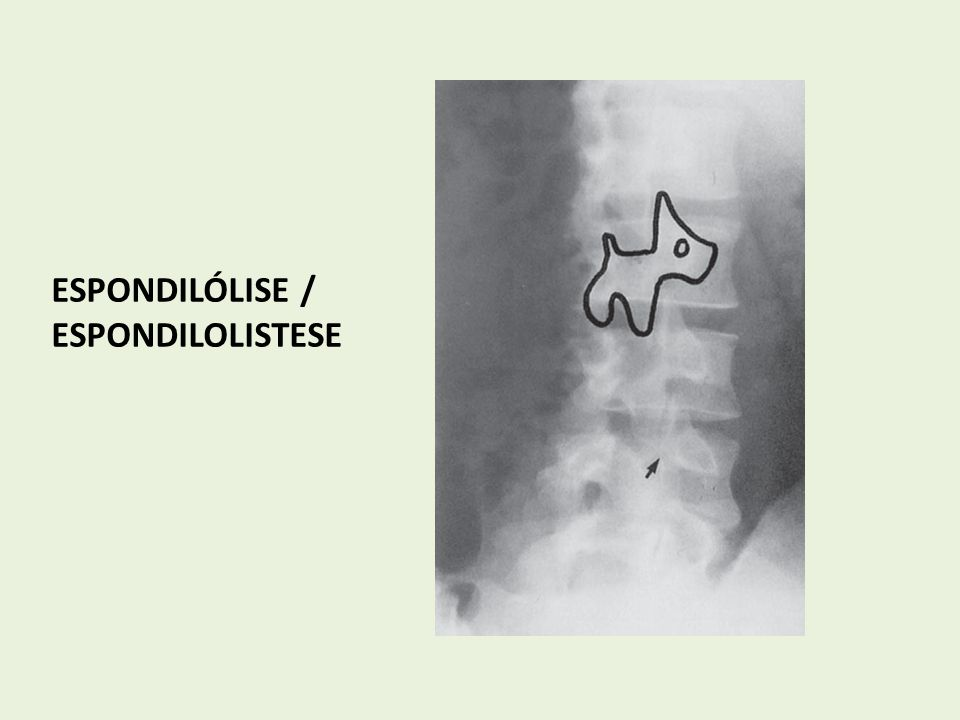 ESPONDILÓLISE / ESPONDILOLISTESE