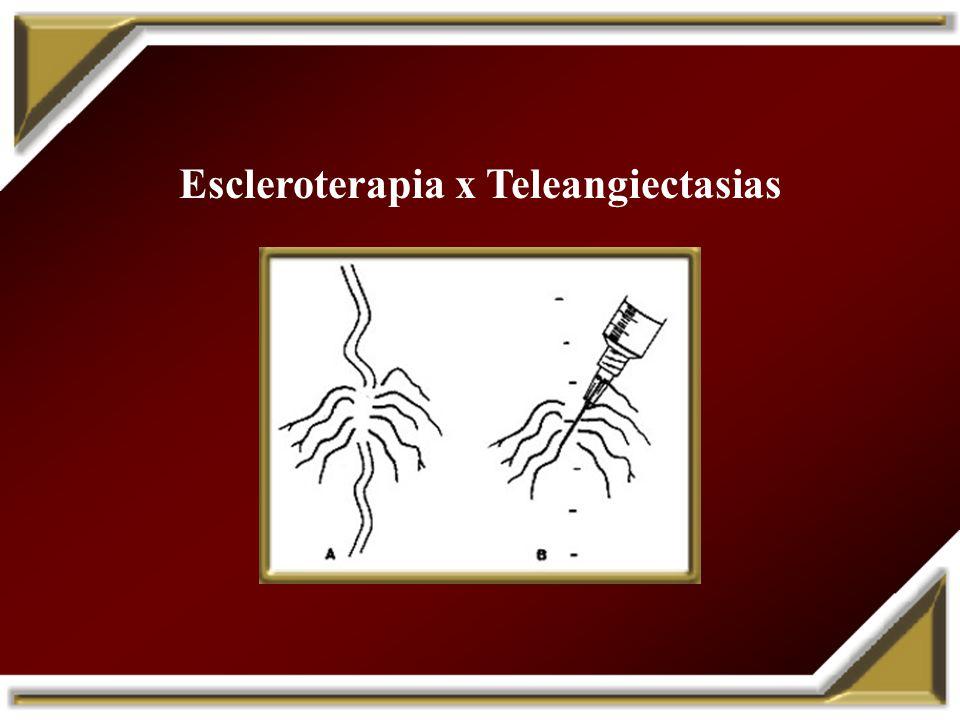 Escleroterapia x Teleangiectasias