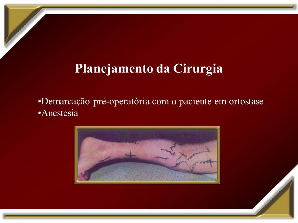 Planejamento da Cirurgia